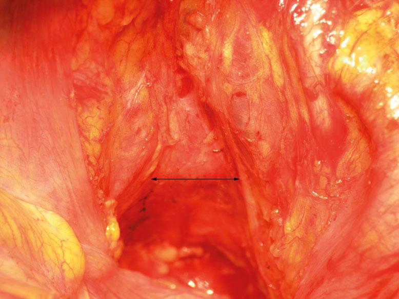 Figur 4. Bekkeninngangen etter lav fremre reseksjon. Pilen angir intakt nervus hypogastricus inferior på begge sider.