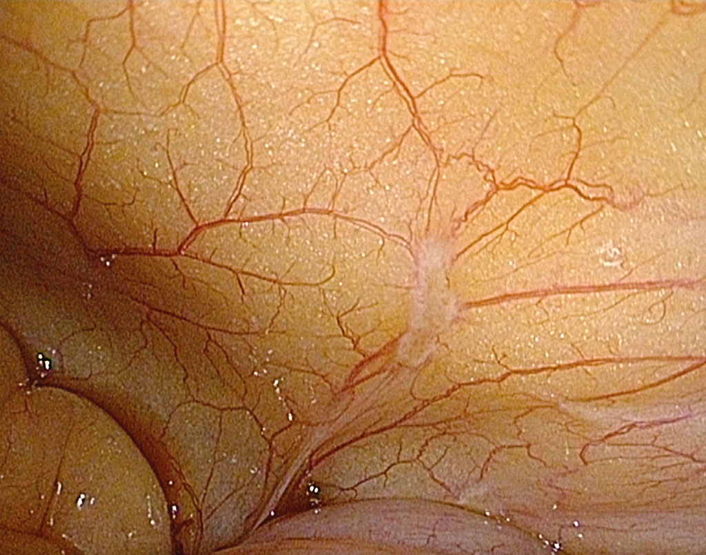 Figur 1. Peritoneal metastase påvist ved laparoskopi i HD-format.