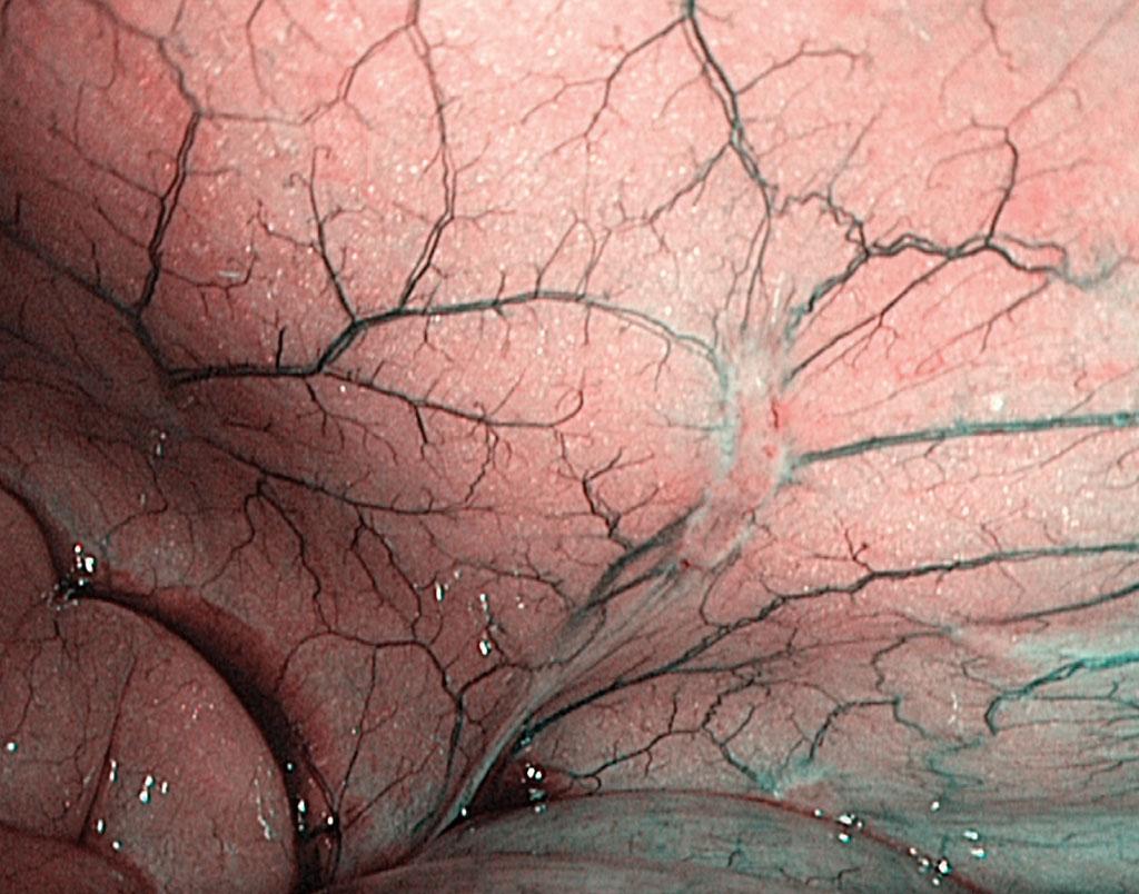 Figur 2. Peritoneal metastase påvist ved laparoscopi i HD-format og NBI (narrow band imaging).
