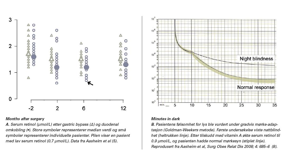 Figur 1. Vitamin A-mangel vist ved lav serum retinol (A) og svekket nattsyn (B).