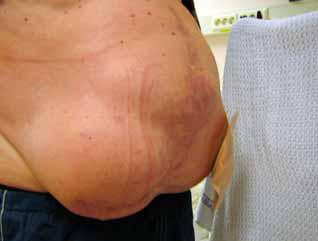 Bilde 1. Brokk i gallet stomiarr i tillegg til nytt venstresidig parastomalt hernie. Foto: Grete Lund