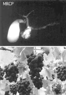 Bilde 4. MRCP bilde ved sidegangs IPMN. Til forveksling likner MRCP bildet en drueklase
