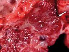 """Bilde 5. Serøst cystadenom i pancreas. Samling av flere cyster fra 1mm til 20 mm. Multiple microcyste  gir """"honning kake"""" konsistens på snittflate. Lobulert ytre kontur og sentralt forkalket arr er klassisk (piler). Fra RadioGraphics."""