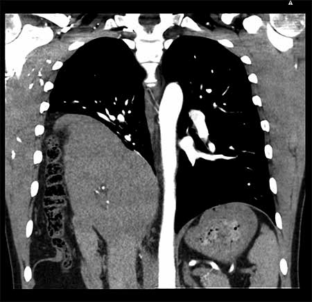 Figur 4. Kasuistikk 2 Preoperativ CT Thorax.