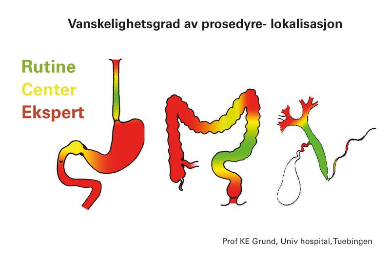 Vanskelighetsgrad av prosedyrelokalisasjon