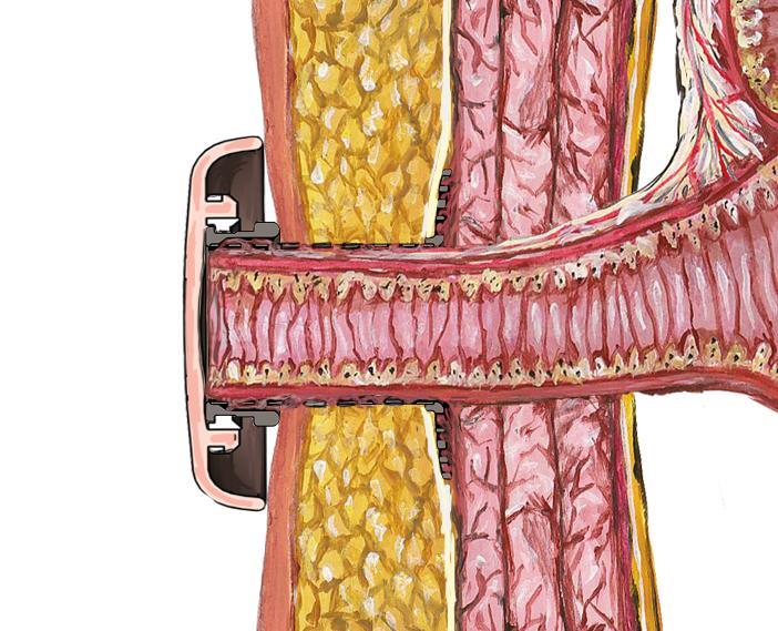 Fig 3. Implantat fastgrodd i bukveggen. Kontinens oppnås med et plastlokk.