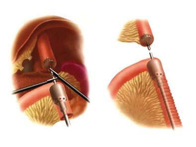 Figur 2: Som et alternativ til en side-side øsofago-jejunostomi kan anastomosen skytes som en ende-side anastomose med sirkulær stapler ført inn vi den ene flankeinsisjonen. Hodet på stapleren kan enten føres inn transabdominelt eller peroralt sondeveiledet.