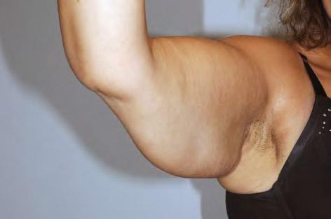 1 Eksempel på overflødig hud på overekstremitet