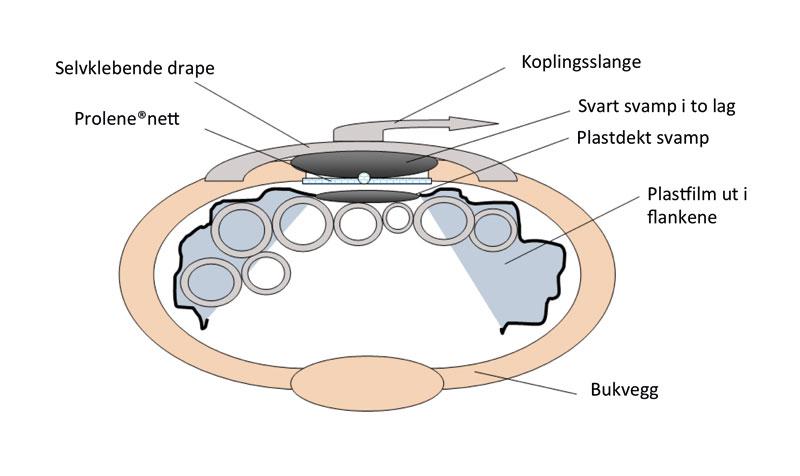 Figur 4. Skjematisk presentasjon av teknikk