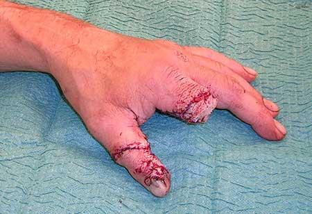 Figur 1.b. Pekefingeren er flyttet til tommelposisjon gjennom volar snittføring og bevart sirkulasjon og ulnare nerve. De øvrige strukturer er rekonstruert.