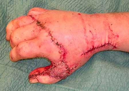 Figur 3.d. Den rekonstruerte tommelen postoperativt. Supplerende dekning med delhudstransplantat. Sår etter karanastomosering i tabatieren.