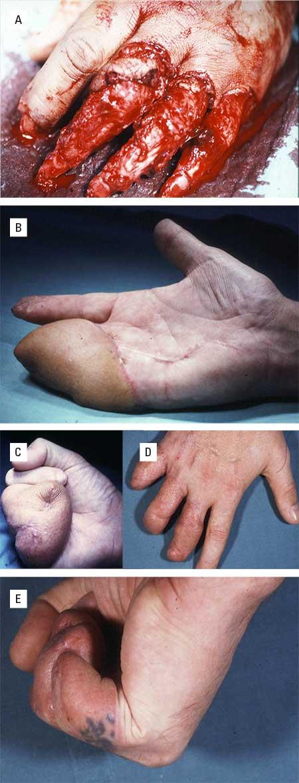 Figur 2. a. Finger-avulsjonsskade hvor replantasjon ikke var mulig. B. Huddefekten på de tre ulnare fingrene ble dekket av en fri vaskularisert lateral overarmslapp som en vott. C. Fingerbevegeligheten ble umiddelbart trenet opp. D og E. Deretter kunne fingrene splittes opp.