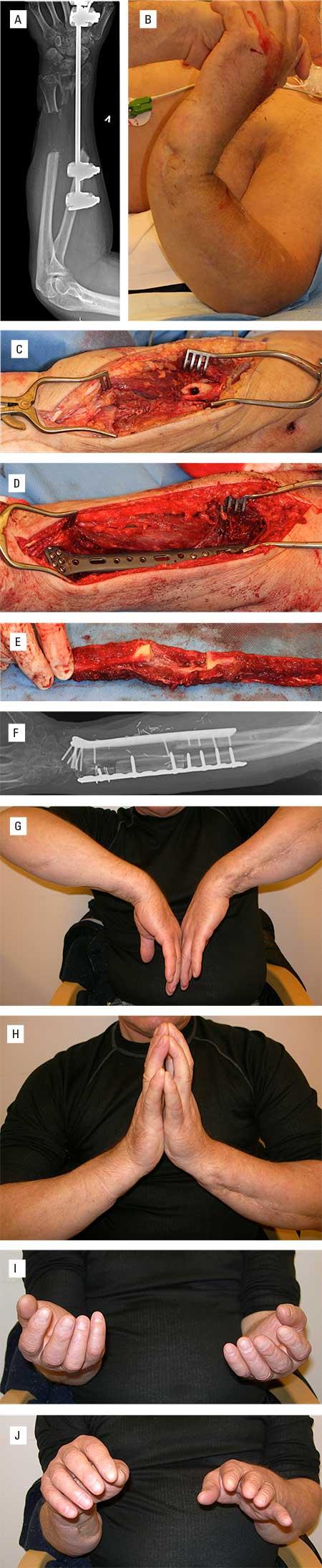 Figur 4. A. Lange diafysære defekter av både radius og ulna etter åpen knusningsfraktur. B. Komplett instabil underarm. C. Defektene i underarmsknoklene ble avdekket. D. Både radius og ulna ble stabilisert med plater i korrekt posisjon. E. Høsting av langt fibulagraft som ble delt i to svarende til defektenes lengder. Graftene ble felt inn og karene suturert inn. F. Postoperativ røntgen viser tilfredsstillende stilling. G-J. Meget tilfredsstillende fleksjon, ekstensjon og underarmsrotasjon på den opererte venstre side.