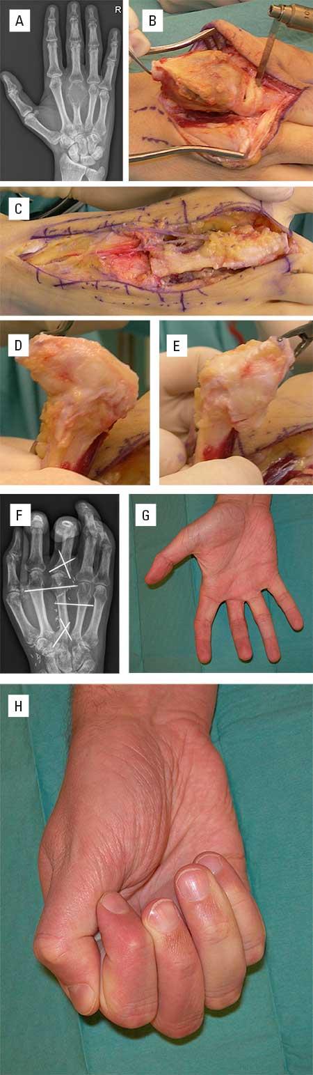 Figur 6. A. Kjempecelle-tumor distalt i 3. metacarp. B. Reseksjon av metacarp og proksimale 5 mm av grunnfalangen. Sener, nerver og andre bløtdeler bevares i full kontinuitet. C. 2. metatars med grunnleddet høstes tilsvarende fra foten stilket opp på arteria dorsalis pedis og en fotryggsvene. Tågrunnledd har naturlig større ekstensjon, D, enn fleksjon, E. Derfor snudde vi matatarsen opp ned før den ble felt inn i defekten i hånden. F. Basis av tå-grunnfalangen ble tredd inn i finger-grunnfalangen, og metatarsen rekonstruerte metacarpen. Fiksasjon med midlertidig pinne-fiksasjon. God innheling. G og H. Tilfredsstillende funksjon etter opptrening.