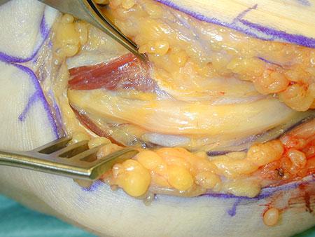 Figur 4. Operasjonsfunn ved cubital tunnell syndrom. Man kan ane snørefure der n.ulnaris har gått inn i flexormuslkulaturen i underarmen like distalt for albuen (mellom pinsetten og sårhaken).