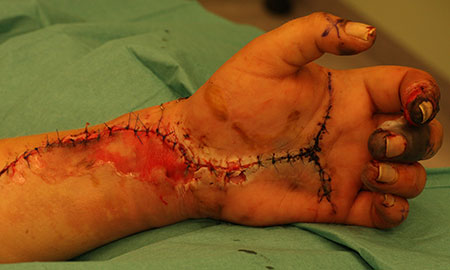 Figur 1. D. En uke senere var sirkulasjonen i hånden fortsatt tilfredsstillende, men med noe mørke fingertupper. Karkirurgene opererte arteria subclavia, som var opphavet til emboliene.