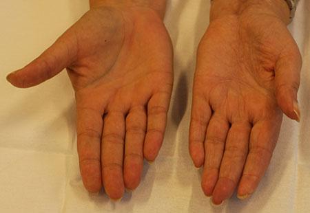 Figur 1. E. Et år senere, fortsatt fin sirkulasjon. Litt redusert tommelabduksjon og hypotrofiske fingertupper. Ellers utmerket håndfunksjon.