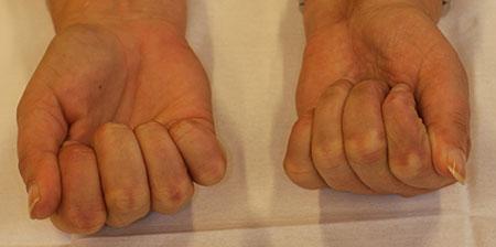 Figur 1. F. Et år senere, fortsatt fin sirkulasjon. Litt redusert tommelabduksjon og hypotrofiske fingertupper. Ellers utmerket håndfunksjon.