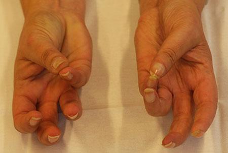 Figur 1. G. Et år senere, fortsatt fin sirkulasjon. Litt redusert tommelabduksjon og hypotrofiske fingertupper. Ellers utmerket håndfunksjon.