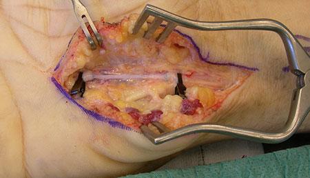 Figur 2. B. Det affiserte arteriesegment er resesert og erstattet med et reversert venegraft høstet fra underarmen. Avbrutte Prolen 9-0 karsuturer ende-til-ende.