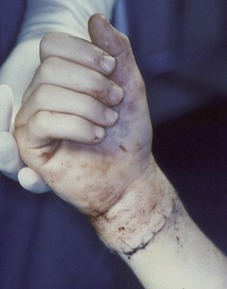 Figur 3. b. Hånden er replantert.