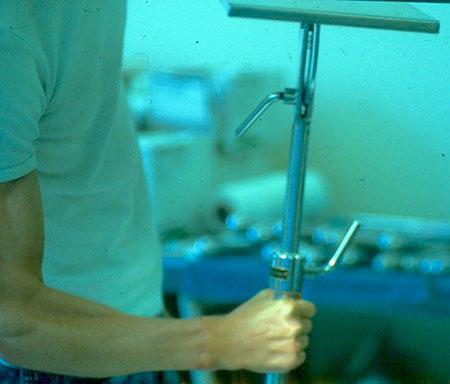 Figur 3. c. Etter 1 år er pasienten tilbake i sitt gamle industriarbeid med nærmest normal håndfunksjon. Sensibiliteten er utmerket. God bøyeevne og styrke, løfter og balanserer et stål-armbord.