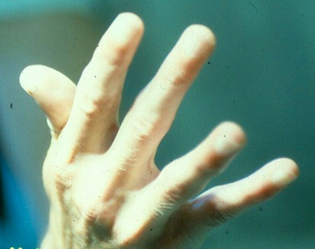 Figur 3.d. God strekke- og sprikefunksjon av fingrene.
