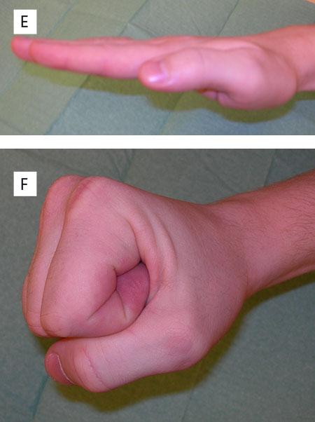 Figur 5. e og f. Et år senere har fingeren normal sirkulasjon og nærmest normal funksjon.