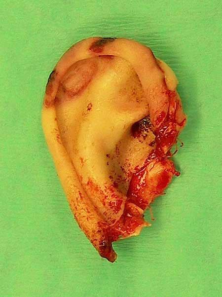 Figur 7.a. Avbitt øre. Bittmerker i øvre del.