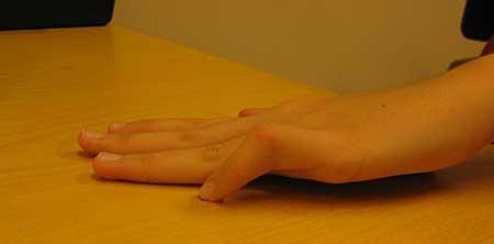 Figur 2. Camptodactyli 5.finger