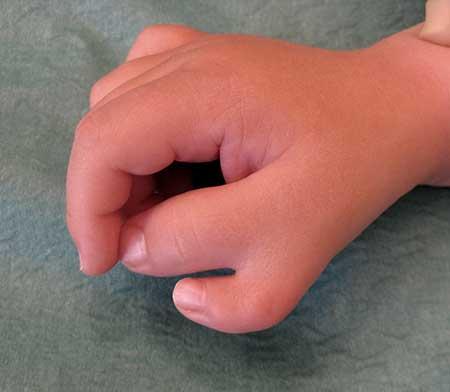 Figur 5.a.Tommelduplikasjon høyre side