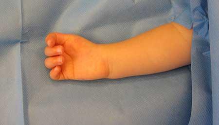 Figur 8.a.Barn med tommel aplasi høyre side som opereres med b.pollicisasjon