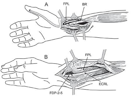 Figur 3a. M. brachioradialis skal være ny motor for tommelbøy. Den fridissikeres til høyt på underarmen, tranponeres og kobles til tommelens lange bøyesene (FPL) like proksimalt for håbdleddet. ECRL kan kobles til de dype fingerbøyerne (FDP II-V) for å gi aktiv fingerbøy.