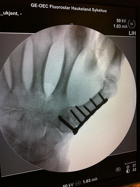 Figur 4. Artrodese av fingerens rotledd (CMC-1) for å optimalisere tommelens posisjon når det kun er en muskel som styrer tommelen.