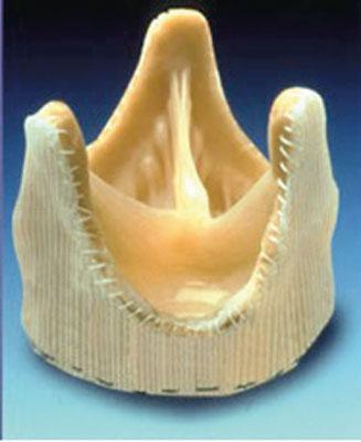 Fig. 3. Biologisk klaffeprotese fra gris