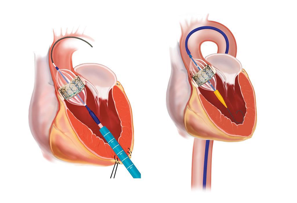 Fig. 1c. Transkateter aortaventil-implantasjon (Edwards Sapien) med transapical tilgang via minithoracotomi. Fig. 1b. Transkateter aortaventil-implantasjon (Edwards Sapien) med transfemoral tilgang.