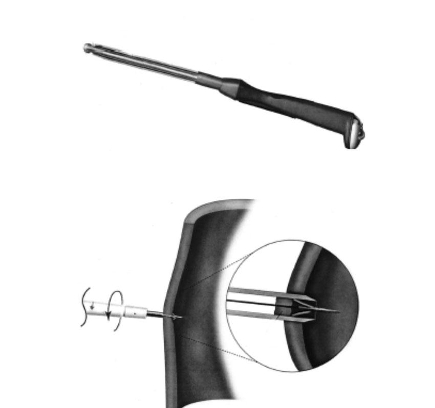 Fig 2. Symmetry® proksimale anastomose system