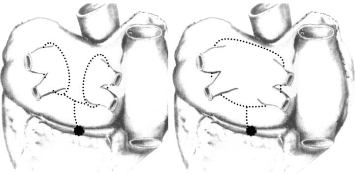 """Fig. 1. """"Mini-maze"""". Ved denne """"kutt og sy"""" metoden kan atrieflimmer behandles."""
