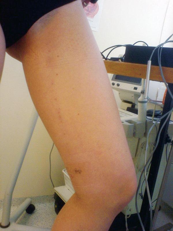 2 uker etter vellykket, primær laser-obliterasjon av vena saphena magna.