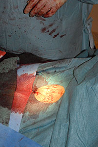 Figur 5. Avsluttet inngrep med en enkelt sutur i høyre lyske.