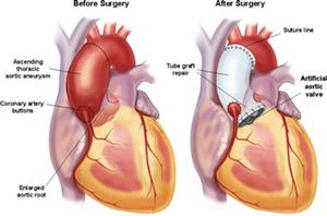 Figur 1: Operasjonsmetoder ved dilatert aortarot: 1a: Klaffebærende condiut med mekanisk aortaventil.