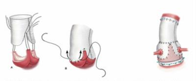 Figur 1: Operasjonsmetoder ved dilatert aortarot: 1b: Ulike teknikker for klaffebærende conduit.