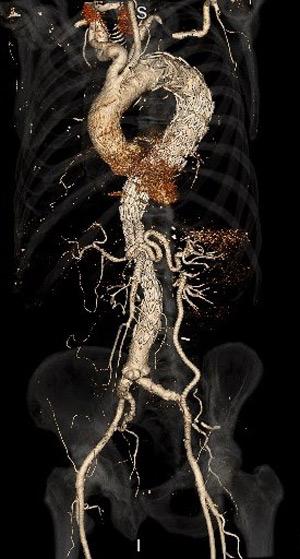 Figur 3: CT-bilde som demonstrerer stentgraft fra venstre arteria subclavia til et infrarenalt rørgraft. Grener går ut i henholdsvis truncus celiacus og i arteria mesenterica superior. Venstre nyre forsynes av en bypass fra venstre arteria iliaca externa.