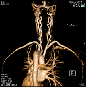 Figur 4: MR-angiografi som viser slyngede kalibervekslende aa vertebrales hos pasient med Loeys-Dietz syndrom. Legg også merke til interposisjonsgraft i a subclavia venstre side hvor pasienten er operert for aneurisme (Fra Radiologisk avdeling, OUS-Rikshospitalet).