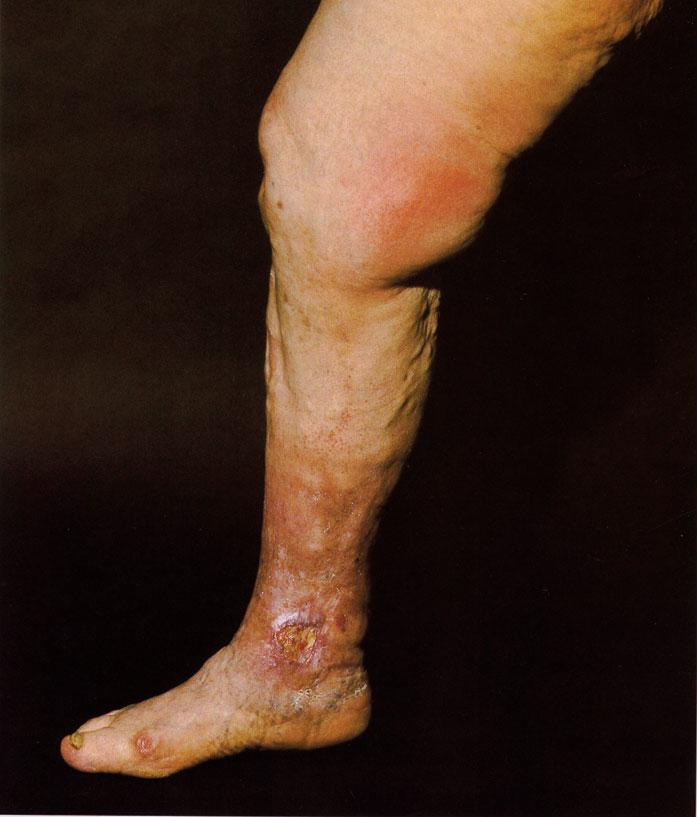 Bild 1. Avanserad kronisk venös insufficiens (ytlig). Bilden visar varicer, venektasier, dystrofiska förändringar i form av pigmentnedslag, stasdermatitt och dermatoliposkleros. Ulcus cruris veno-sum vid mediala malleolen. Bifynd: Nagelmykos, Hallux valgus. Ytlig tromboflebit på mediala låret.