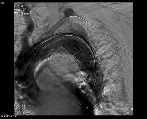 Fig. 2. Hovedstentgraft i torakal aorta med et chimney graft utløst i subclavia.