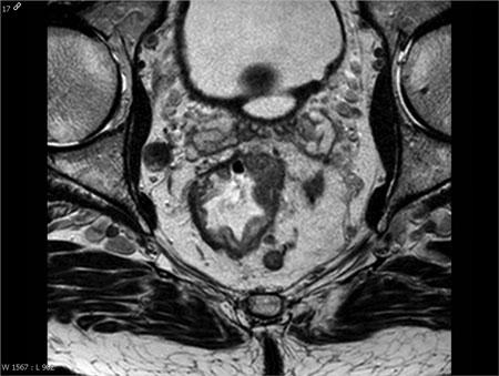 Bilde 4: Ax T2, 3mm. Metastatiske lymfeknuter i og utenfor MRF.