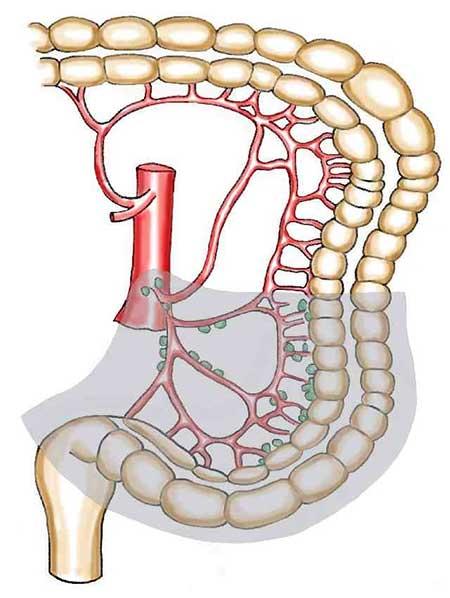 Figur 1. D3 disseksjon.