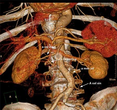 Figur 6. CTK angio for preoperativ kartlegging av karanatomi.