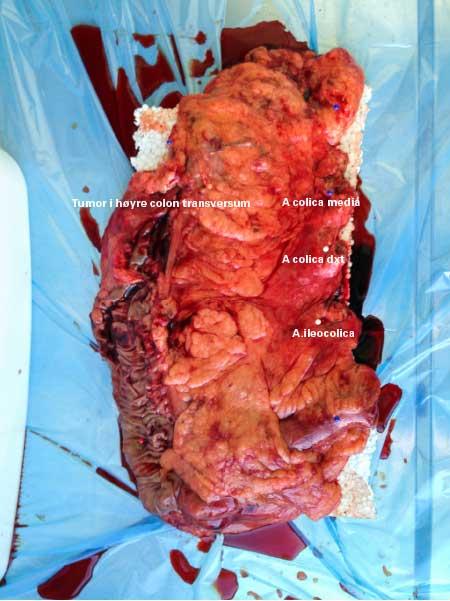 Figur 1: Preparatet etter laparoskopisk CME utvidet høyresidig hemikolektomi. Preparatet inneholder mye mesokolisk vev, a colica media avsatt helt sentralt+ vev ved fundus ventrikuli og infrapylore lymfeknuter med i preparatet. Noe høy BMI på pasienten.